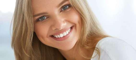 ¿Qué es preferible, el blanqueamiento dental o las carillas dentales?